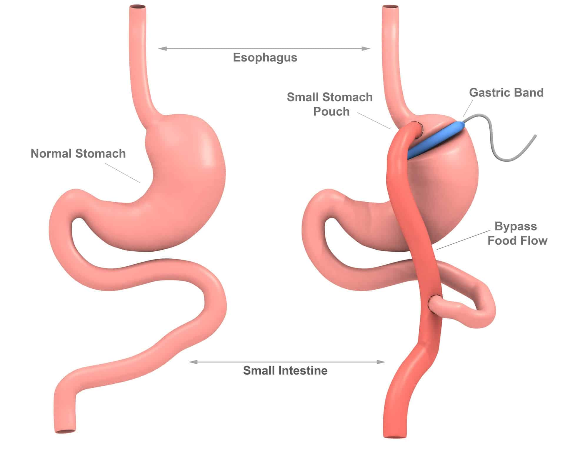 gastric bypass and gastric band Unlike the laparoscopic adjustable gastric band (lap band), these two operations are both permanent, reduce hunger, and lead to the highest percentage of weight loss to properly compare gastric sleeve surgery to gastric bypass surgery we will examine the following data :.