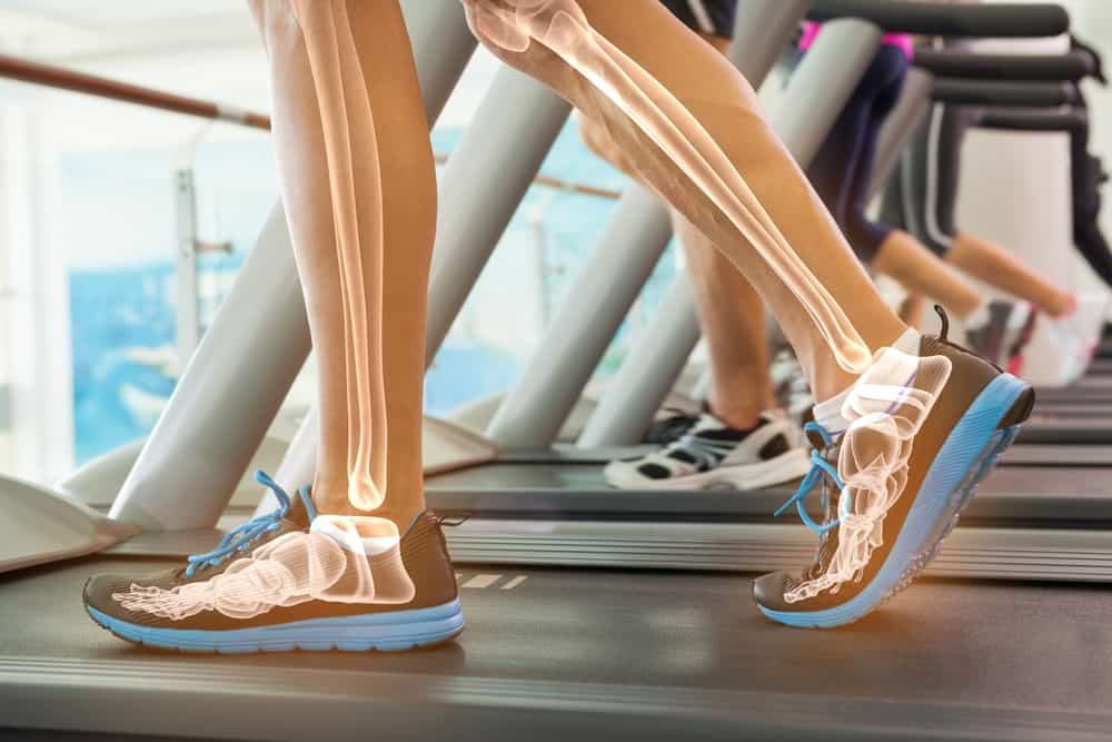 dieting and bone health